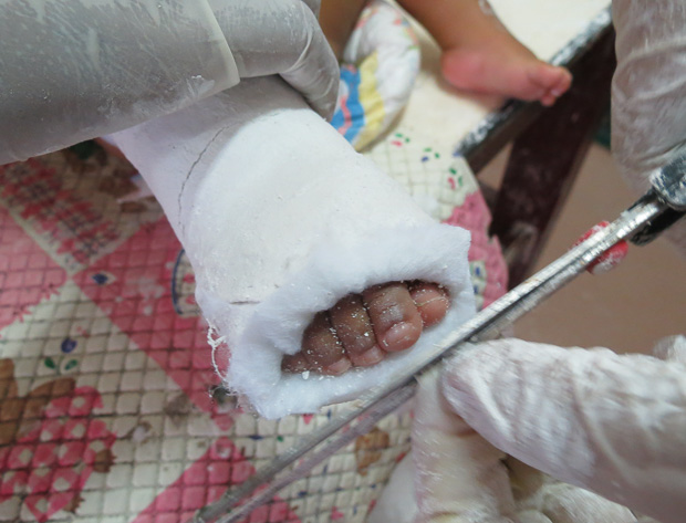 The serial casting is cut off to open and check for any signs of pressure on the toes