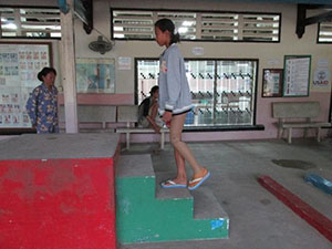 Photo of Sum Srey Norng walking up stairs with her prosthetic